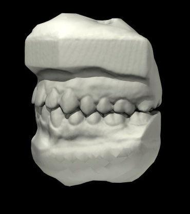 various_scans_teeth_1.jpg