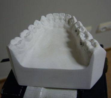 various_scans_teeth_2_orig.jpg